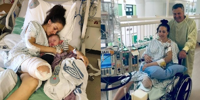 Mom 'Grateful' to be Alive after Losing Leg Off by Truck in a Horror Motorcycle Accident